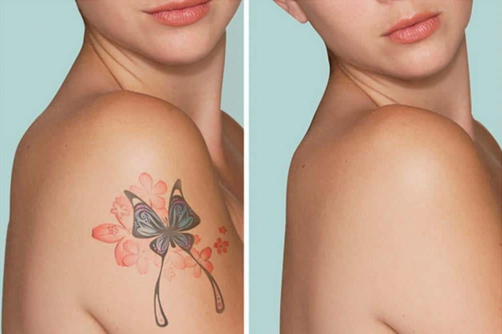 after laser tattoo removal procedure
